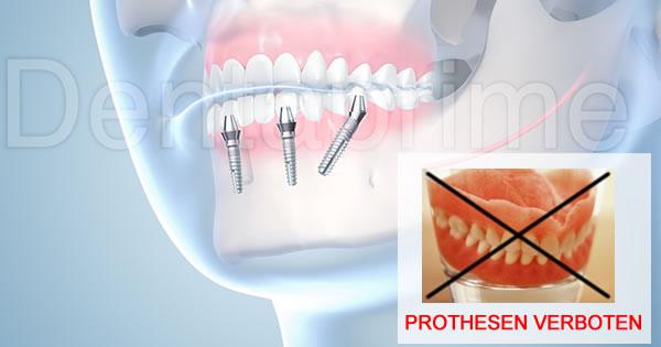 Prothesen verboten!