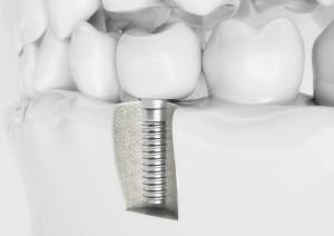 Implantat im Kiefer