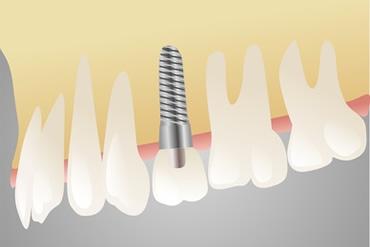 Implantatgetragene Prothetik