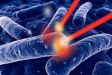 Weichgewebe-Lasertherapie