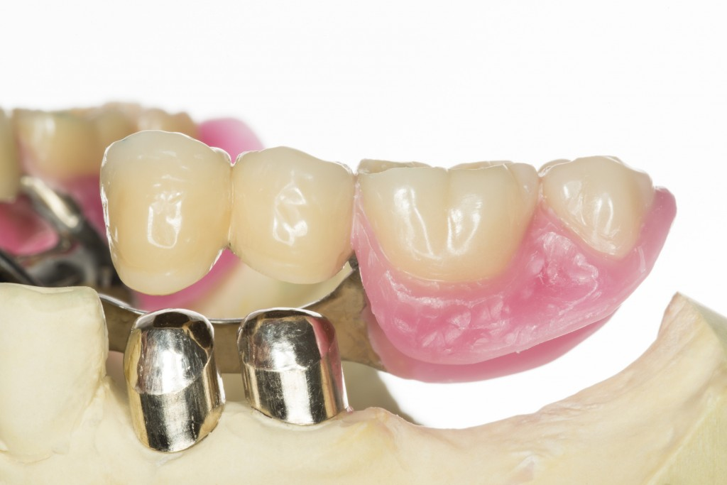 Removable tooth replacement
