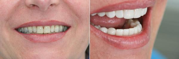 Schöne Zähne vorher nachher