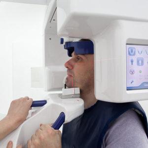 Die digitale Volumentomographie zeigt genau, wie viel Kieferknochen noch vorhanden ist.