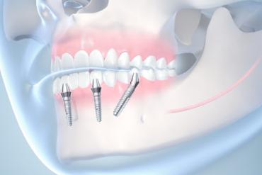 Sofort feste Zähne