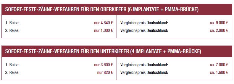 Preise für Sofortimplantate