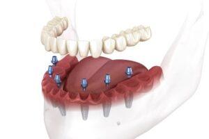 Herkömmliche Implantate