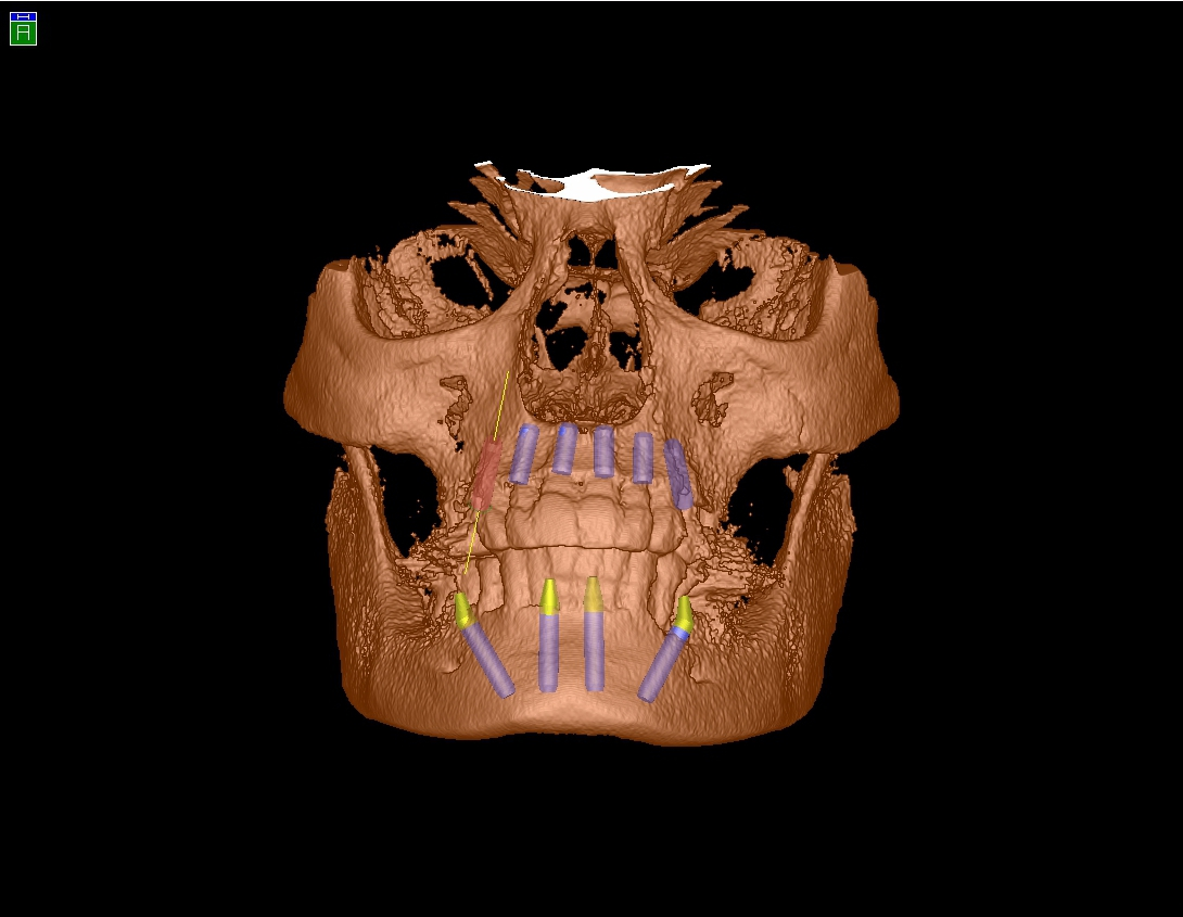 A Look Into the Future – Using a Face Scanner to Plan a Dental Prosthesis