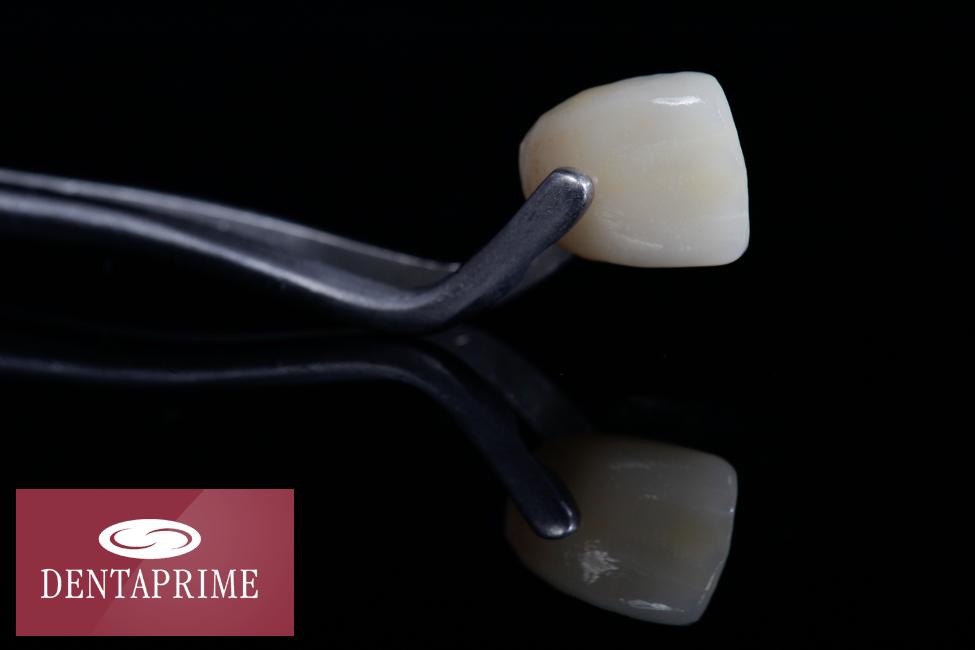 Wunderwerk Zahn: 8 Fakten über Zähne