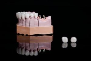 Fehlende Zähne sollten im idealfall durch Implantate ersetzt werden