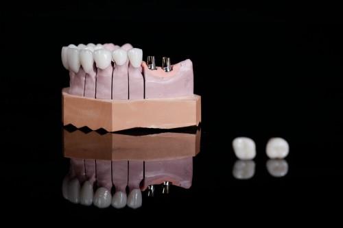 Warum Sie sich für Implantate entscheiden sollten