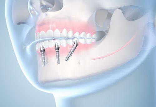 """Das Leben wieder genießen: Die Methode """"Sofort feste Zähne"""""""