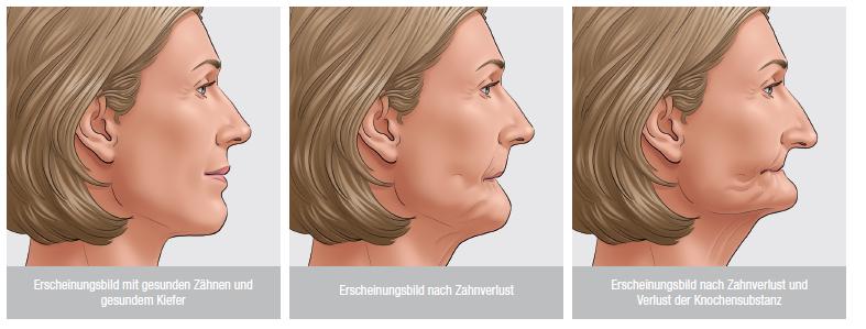 """Der Körper baut Kieferknochen, der keine Zähne hält, ab. Dies ist die sogenannte Resorption, die zu dem typischen """"Greisengesicht"""" führt."""
