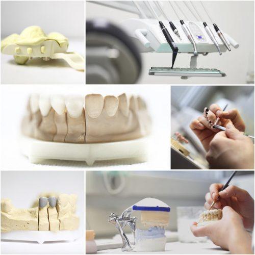 Ihre Zahnersatz-Versorgung in der Dentaprime-Zahnklink: Wie läuft das ab?