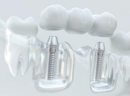 Knochenaufbau: Die Basis für feste Zähne