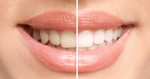 VeneerstoGo: Schöne Zähne an nur einem Tag?