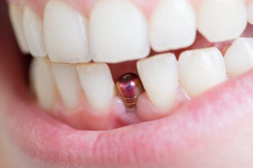 Zahnimplantate Allergische Reaktion:Titanoder Keramik?
