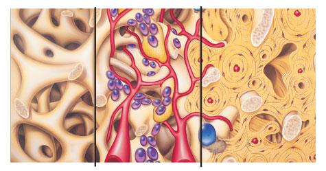 Knochenaufbau vor Zahnimplantaten und Sinuslift