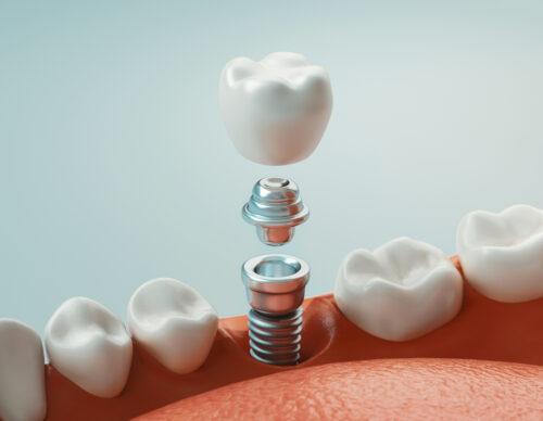 Zahnimplantat Arten: welche gibt es und welche ist die richtige für Sie?